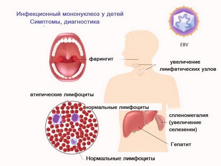Эпштейн барр - вирусная инфекция, симптомы, лечение