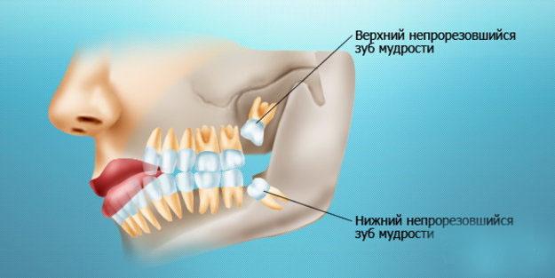 Ретинированные и дистопированные зубы: показания к удалению и особенности ухода | za-rozhdenie.ru