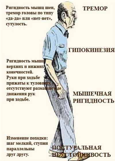 Болезнь паркинсона: что это, паркинсонизм, причины, стадии, симптомы, лечение заболевания.