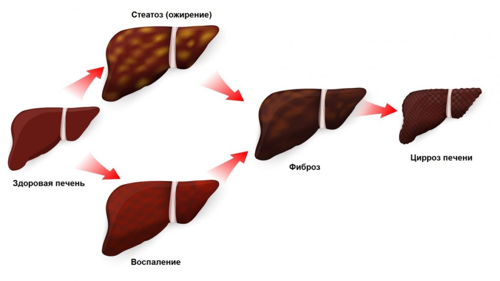 Фиброз печени. что это такое, откуда берётся и когда переходит в цирроз