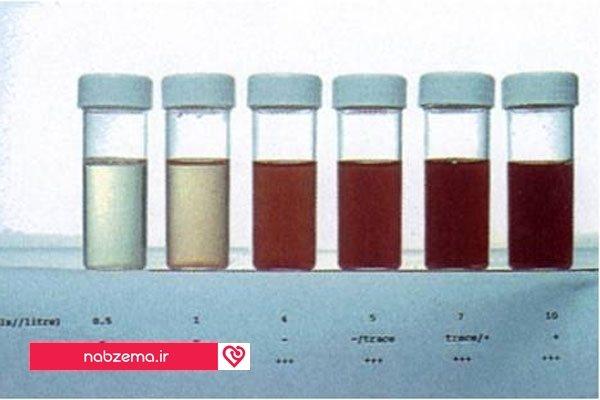 Гематурия - причины, лечение, виды, сопутствующие симптомы, диагностика