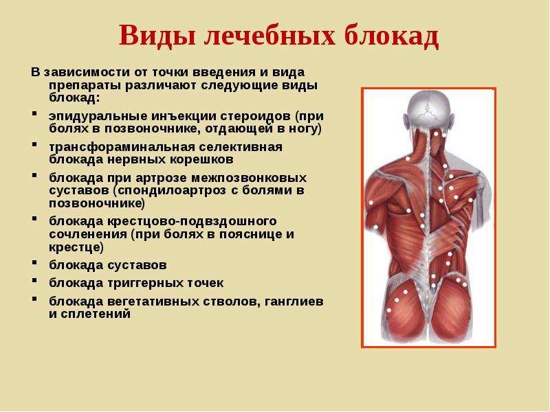 Что такое блокада позвоночника при остеохондрозе: лечение, как делают новокаиновый укол