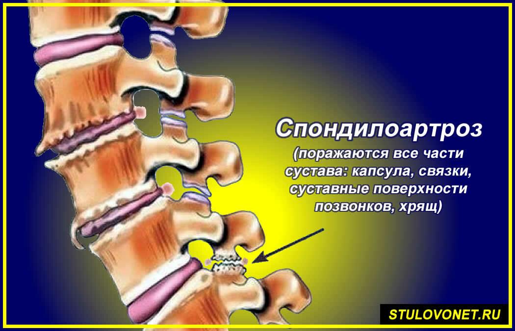 Деформирующий спондилез поясничного отдела: симптомы и лечение