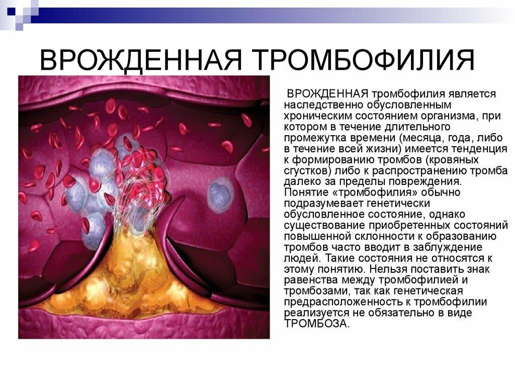 Наследственная тромбофилия - риски, диагностика, генетические факторы