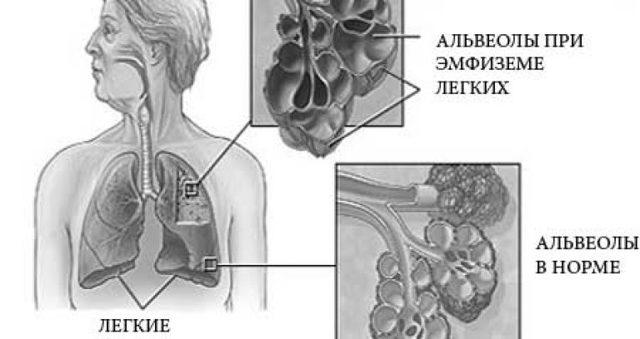 Хирургическое лечение эмфиземы легких