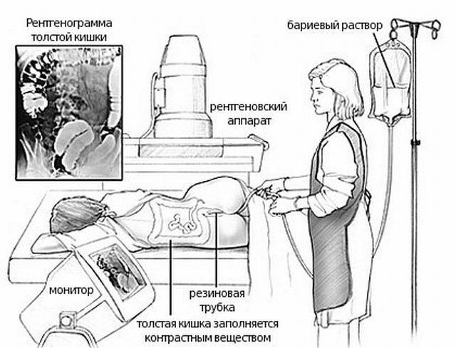 Как подготовиться к ирригоскопии кишечника - лечение