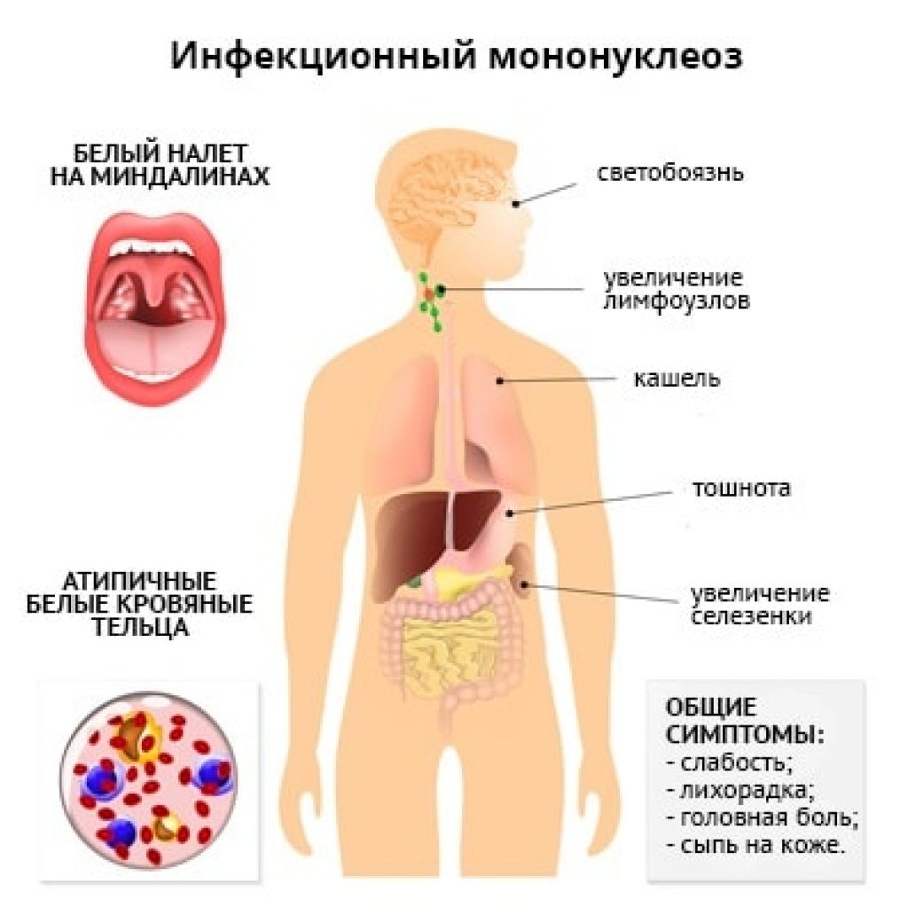 Как лечить вирус эпштейна-барр и что это такое?