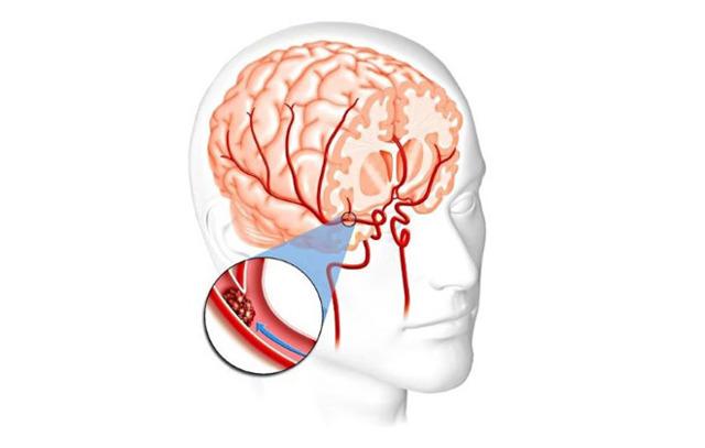 Дисциркуляторная энцефалопатия головного мозга 1, 2, 3 степени