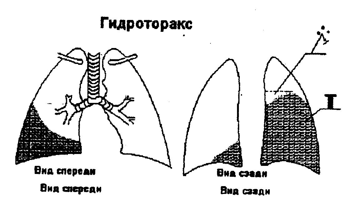 Гидроторакс