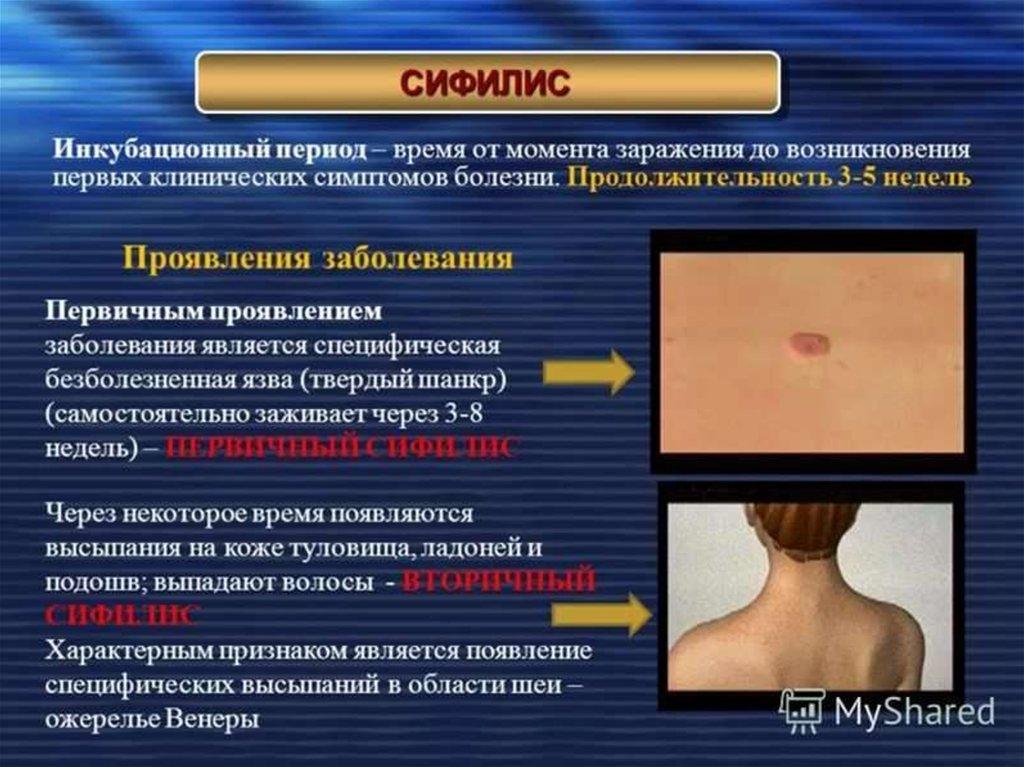Гонорея у мужчин: симптомы и признаки триппера, лечение препаратами и прочие аспекты + фото