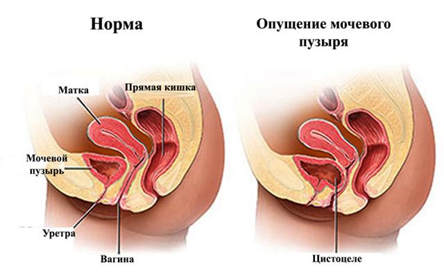 Атония мочевого пузыря: причины, проявления, особенности терапии