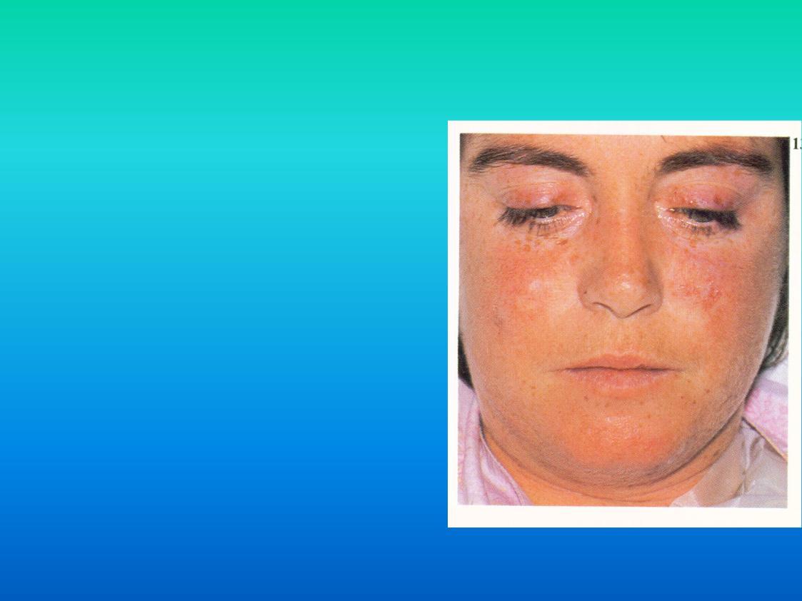 Системная красная волчанка - симптомы  и лечение