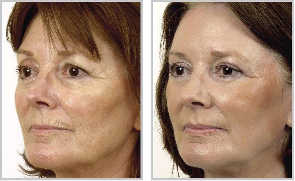 Виды аппаратного омоложения лица в салоне: цена, фото до и после