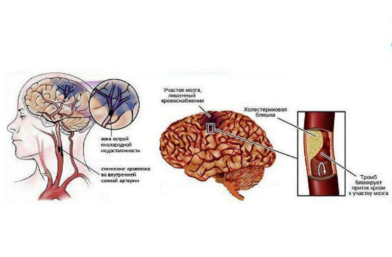Инфаркт головного мозга: что это такое, последствия и шансы выжить