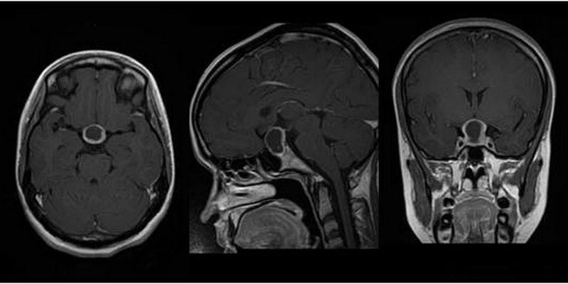 Что провоцирует развитие аденомы гипофиза головного мозга (пролактиномы) и как с ней бороться