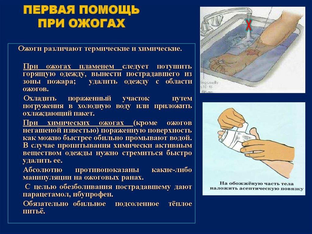 Ожоги: типы ожогов и степени, лечение ожогов бальзамом хранитель