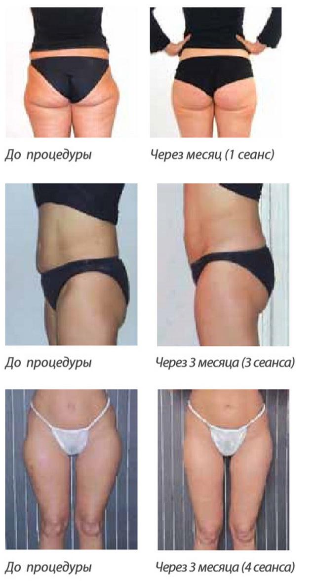 Липолитики - эффективность для похудения, препараты, отзывы, цены и фото