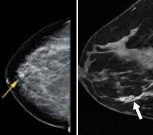 Маммография — показания, подготовка, процедура