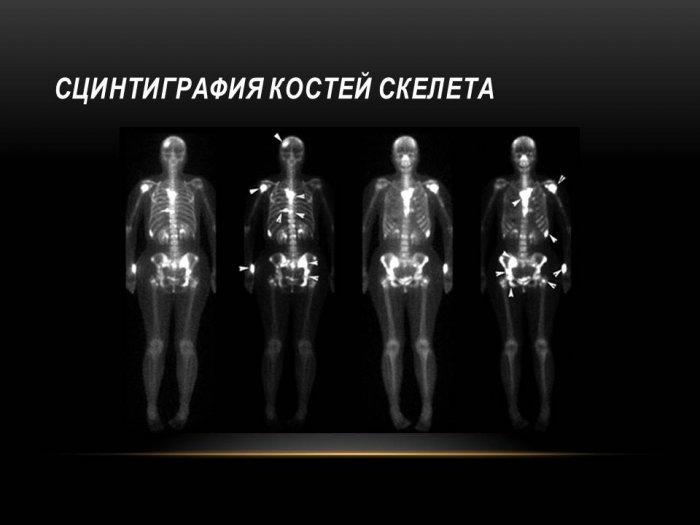 Сцинтиграфия костей скелета: как проводится и что нужно знать - я здоров