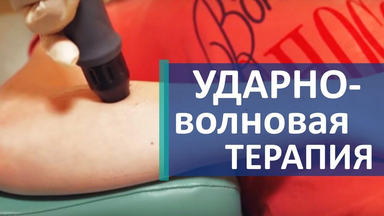 """Ударно-волновая терапия: показания и противопоказания к применению в клинике """"стопартроз"""""""