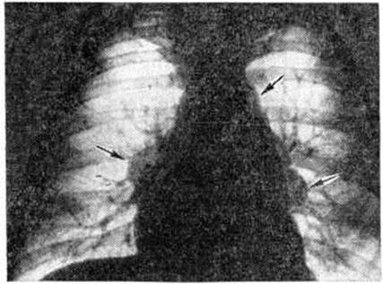 Аксиллярная лимфаденопатия молочной железы: что это такое, причины и симптомы