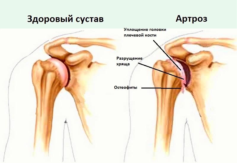 Что такое остеоартрит