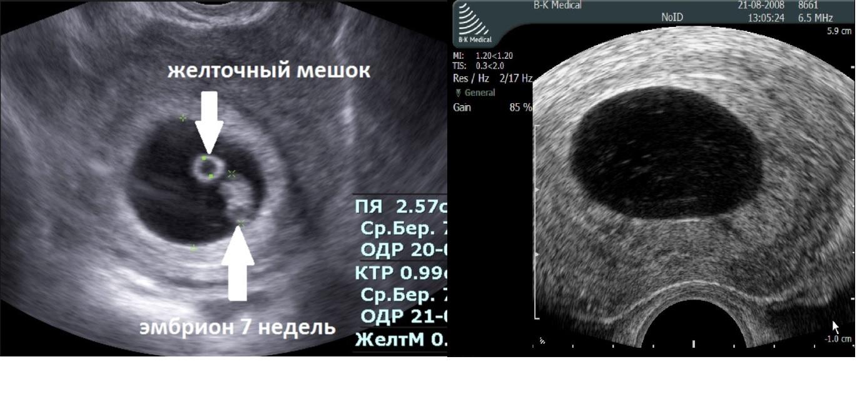 Анэмбриония — причины, симптомы и лечение