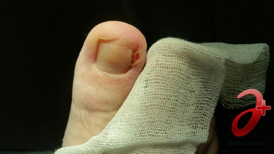 Вросший ноготь на ноге, что делать при вросшем ногте на большом пальце - лечение, удаление проблемы - docdoc.ru