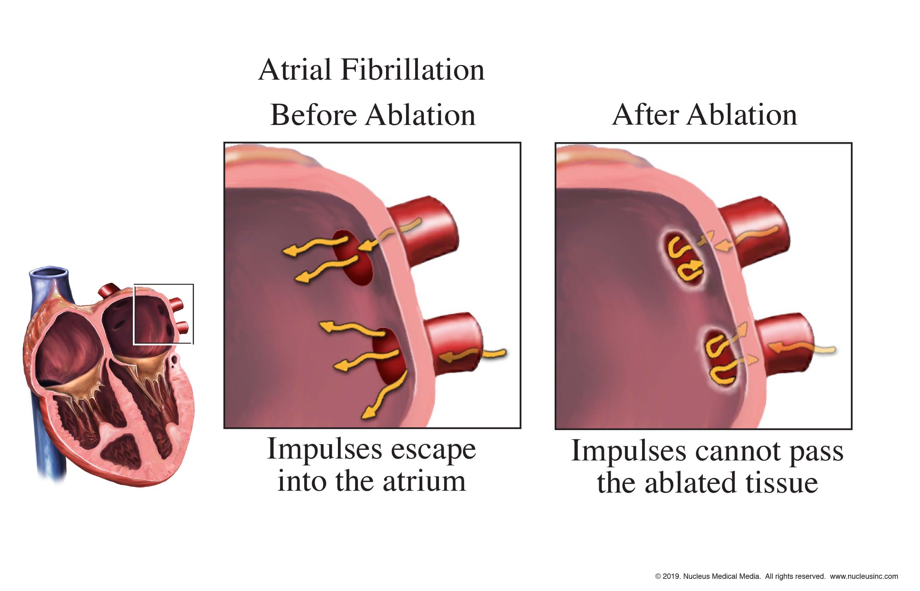 Радиочастотная абляция сердца: что это такое, показания, как делают, противопоказания, последствия