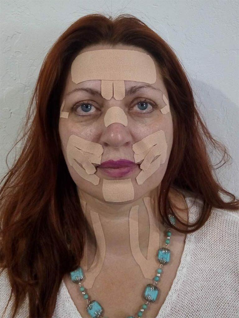 Что такое тейпы для лица