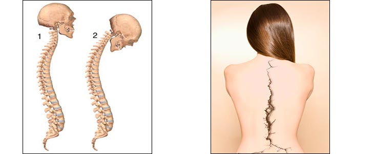 Болезнь бехтерева - что это такое у женщин, симптомы и лечение