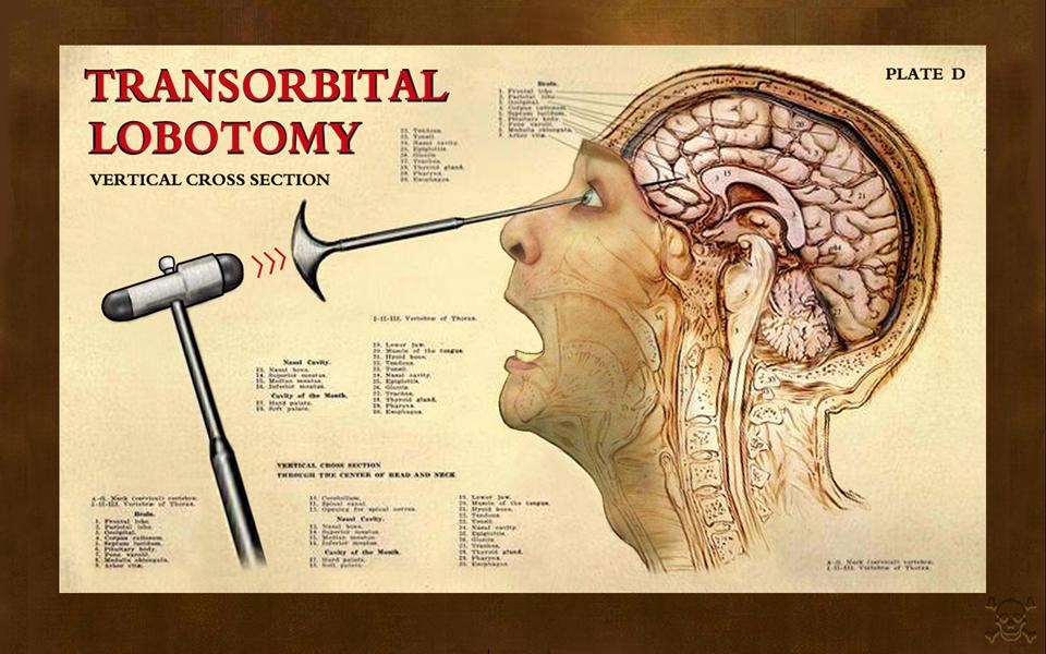 Что такое лоботомия? последствия лоботомии