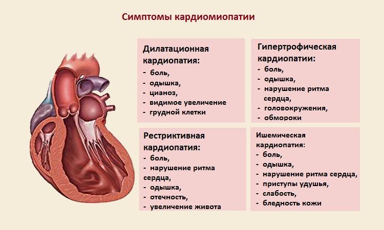 Кардиомиопатия: что это такое, виды, симптомы и лечение