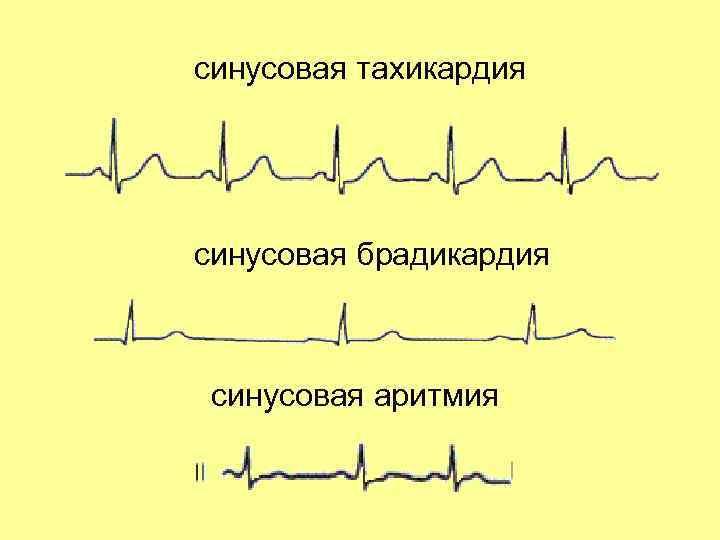 Что такое синусовая тахикардия сердца, каковы симптомы у взрослых, детей и при беременности, особенности лечения?