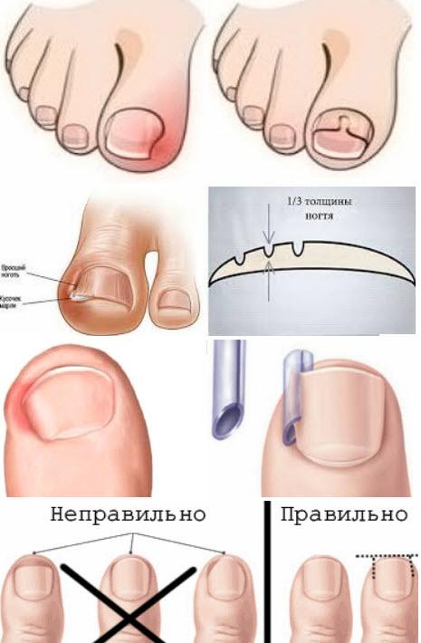 Лечение вросшего ногтя на ноге: как вылечить в домашних условиях?