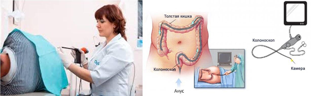 Что такое колоноскопия кишечника и как она проводится