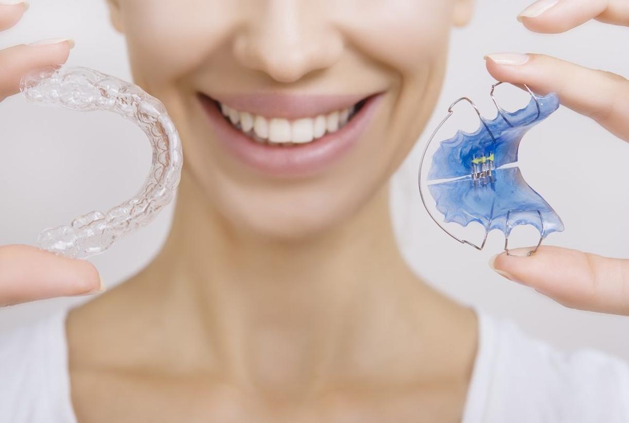 Ретейнер в стоматологии: что это такое, фото до и после, усредненные цены