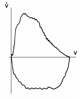 Спирометрия (спирография): что это, показания, расшифровка результатов