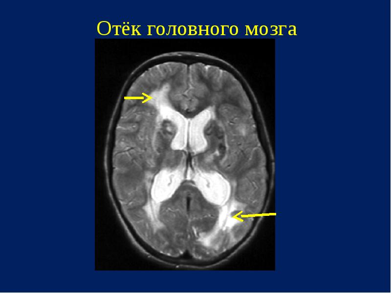 Отек головного мозга - что нужно знать