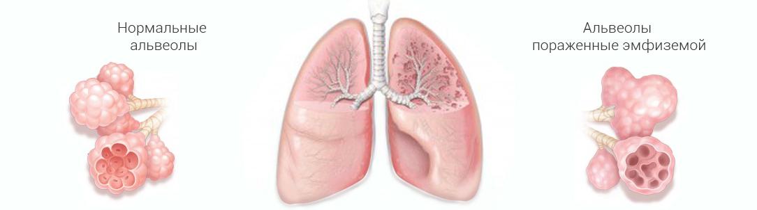Буллезная болезнь легких: симптомы, лечение и прогноз