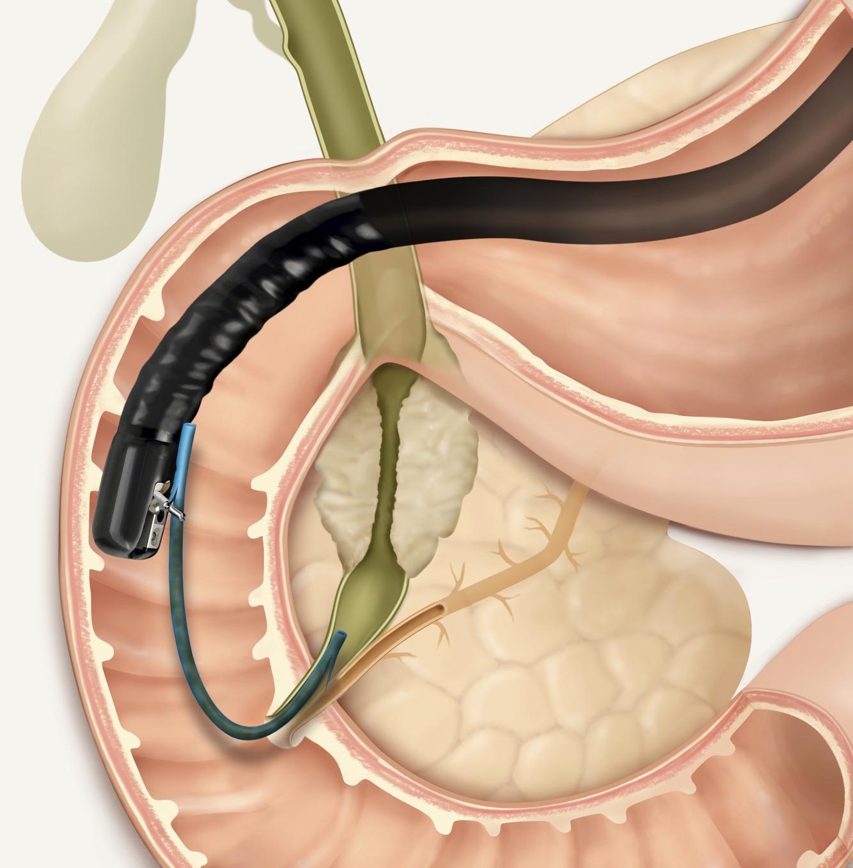 Виды и особенности проведения дуоденального зондирования желчного пузыря