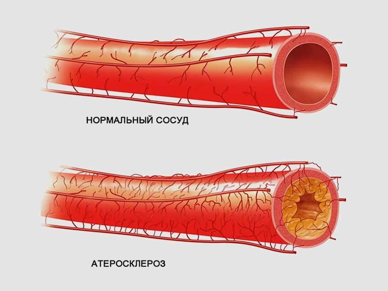 Признаки атеросклероза: первые симптомы закупорки сосудов головного мозга, сердца и других органов, а также диагностика