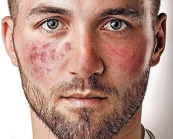 Гиперемия кожи, конъюнктивы, слизистых, зева: что это такое, признаки и причины, симптомы и лечение
