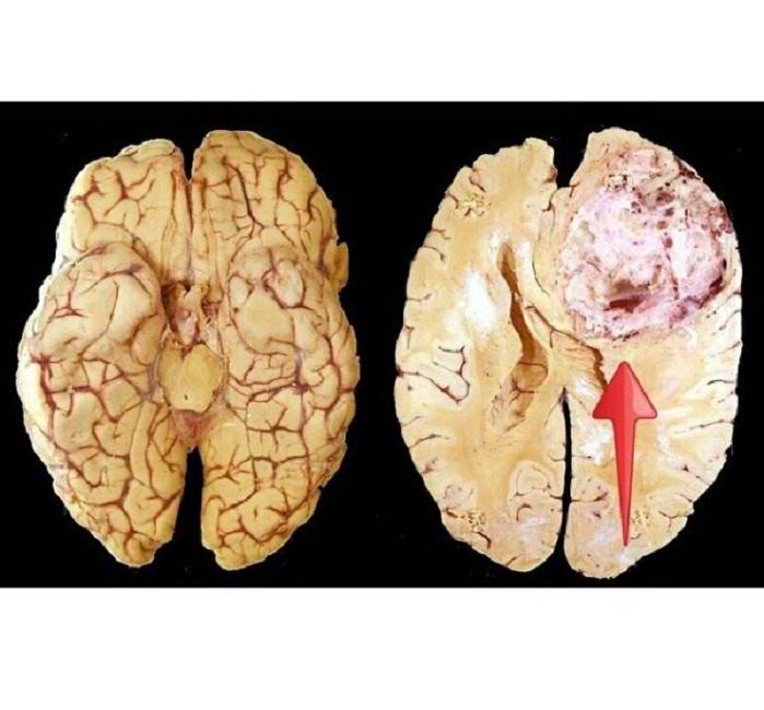 Формы, симптомы и методы лечения глиобластомы головного мозга