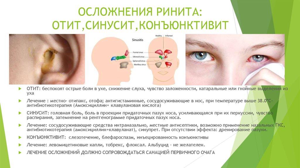 Симптомы и лечение синусита
