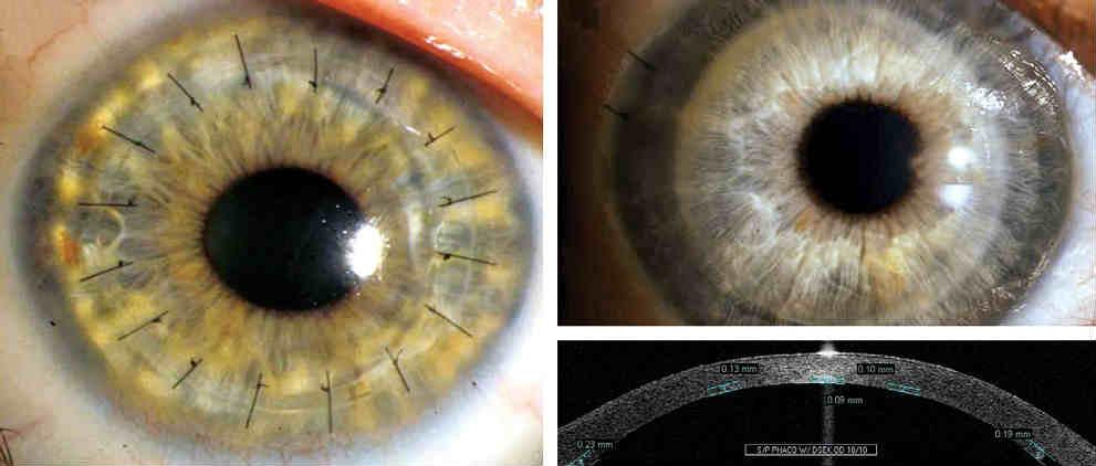 Заболевания роговицы глаза: диагностика и лечение. хирургическое лечение заболеваний