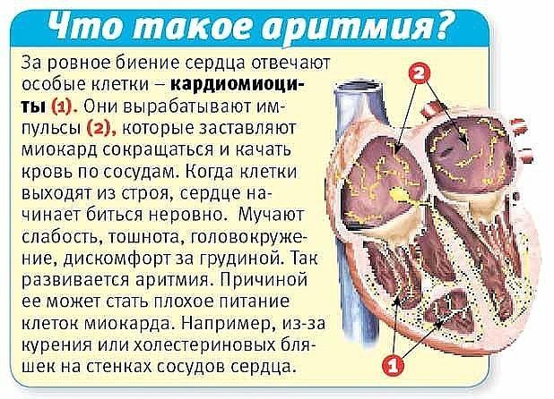 Лечение аритмии народными средствами в домашних условиях: простые методы и полезные рецепты для укрепления сердца и снятия приступа