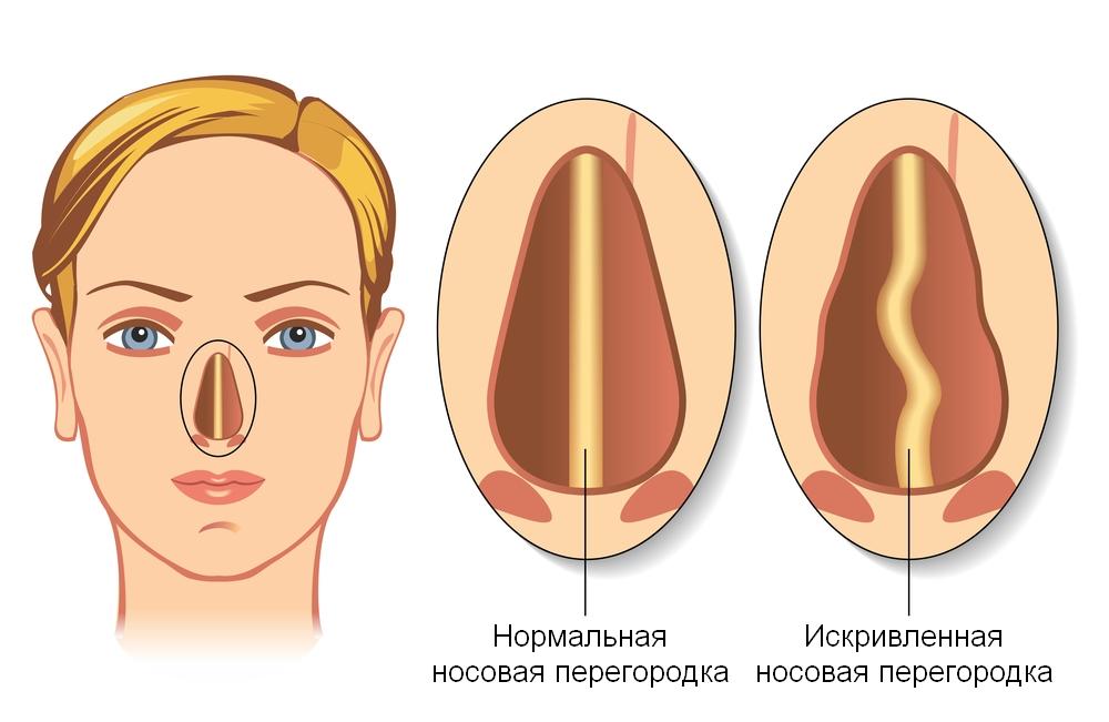 Эндоскопическая септопластика носовой перегородки: что это такое, сколько длится период восстановления?