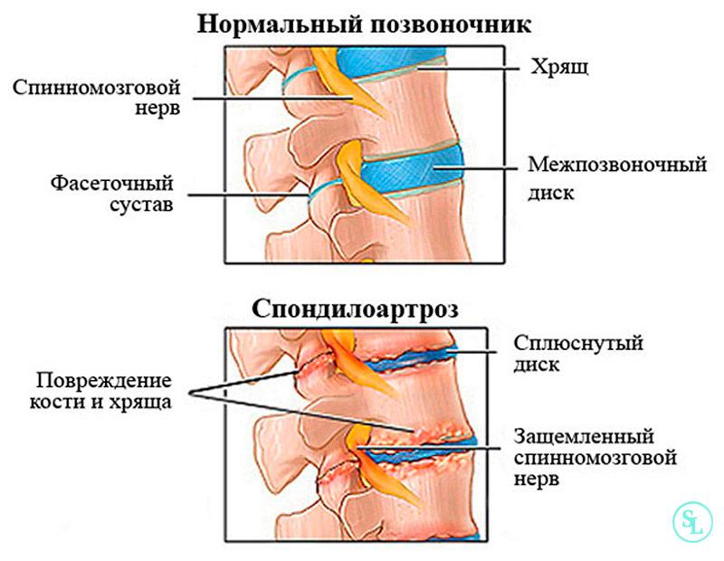 Что такое спондилоартроз - начальные проявления заболевания, симптомы и степени, диагностика и лечение