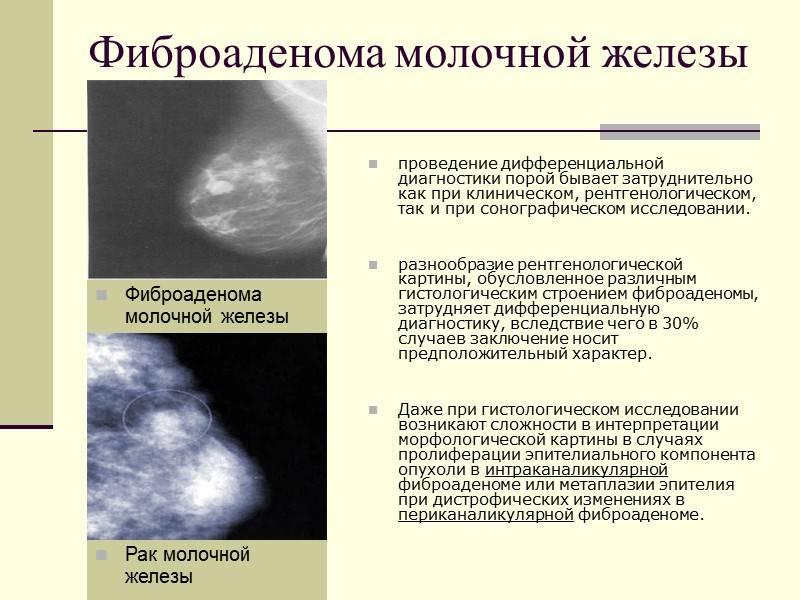 Единичные кальцинаты в молочной железе: механизм образования и лечение